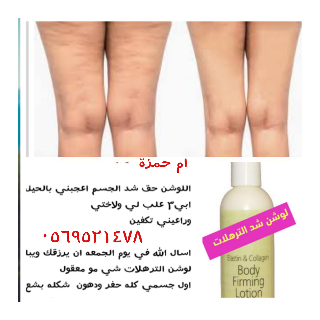 تخلصي من الترهلات والتشققات جسم مشدود مع لوشن شد الجسم p_835ai0ah5.png